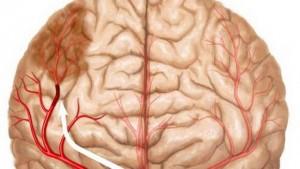 Cómo prevenir un ataque Cerebrovascular