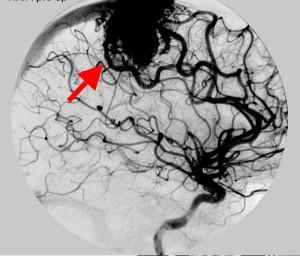 enfer_cerebro_malformaciones_arterio3
